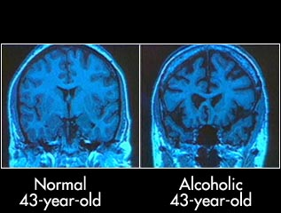 alcohol-brain