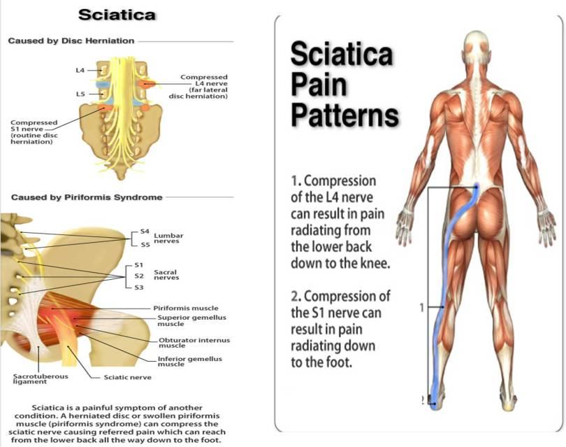 sciatica-pain-pic-pranic-healing-jpgw652